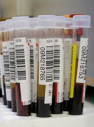 Blood_test